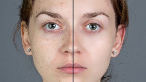 Easiest Ways To Get Rid Of Facial Blemishes